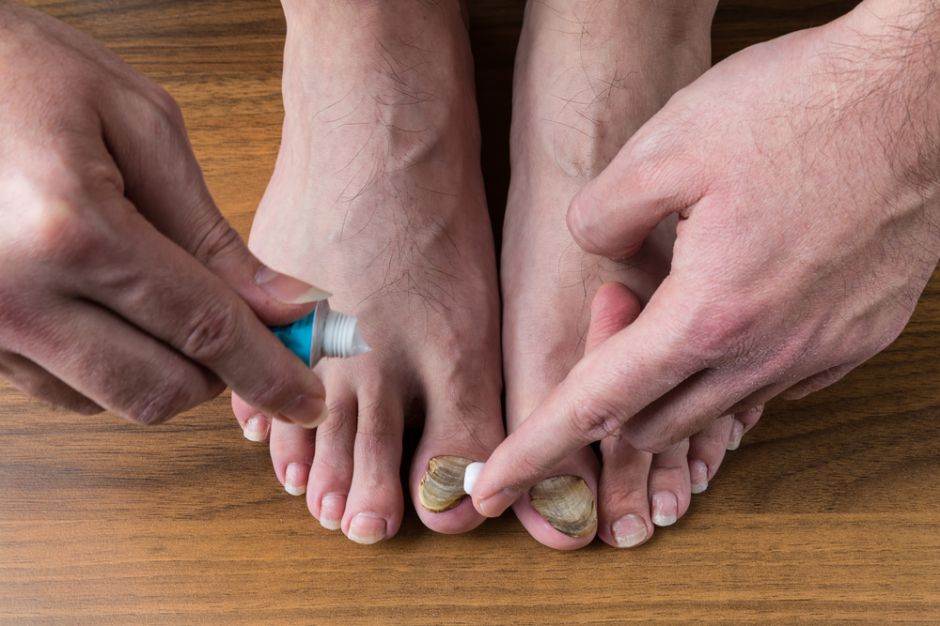 Hongos en las manos uñas