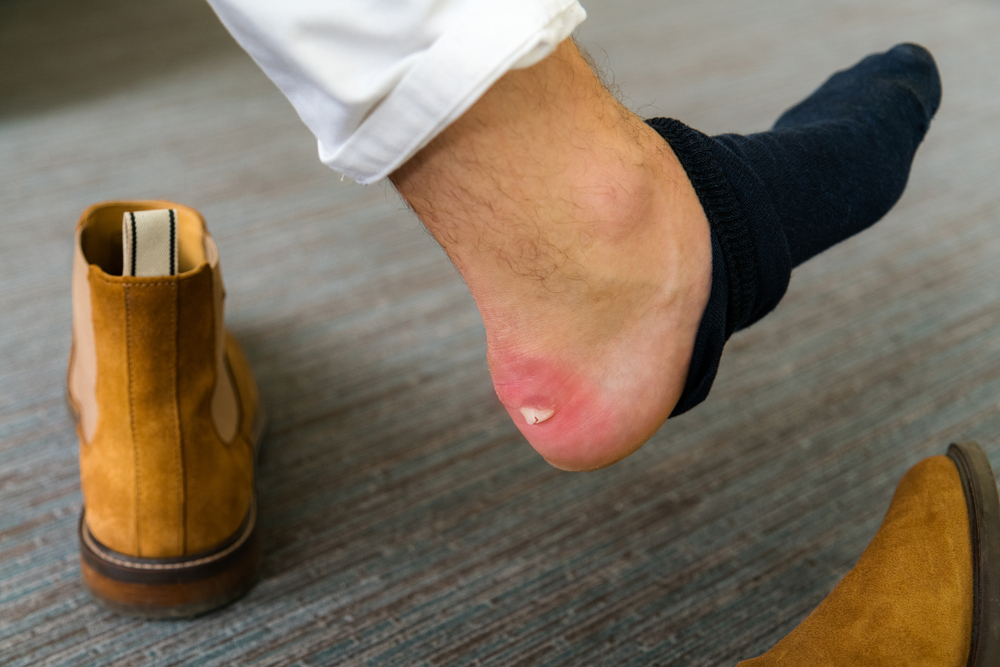 ¿Tienes ampollas en los pies? Algunos consejos y productos para evitar usar curitas
