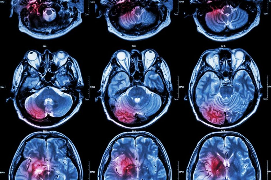 Los síntomas que advierten de un derrame cerebral