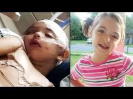 Niña de 5 años en estado crítico por el impacto de un televisor sobre su cabeza
