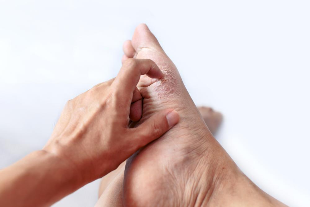 Los 3 mejores productos para calmar el picor de los pies por hongos