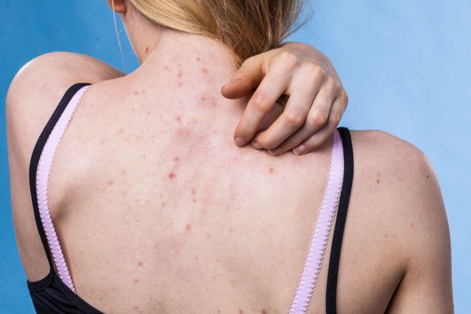que sirve para el acné severo