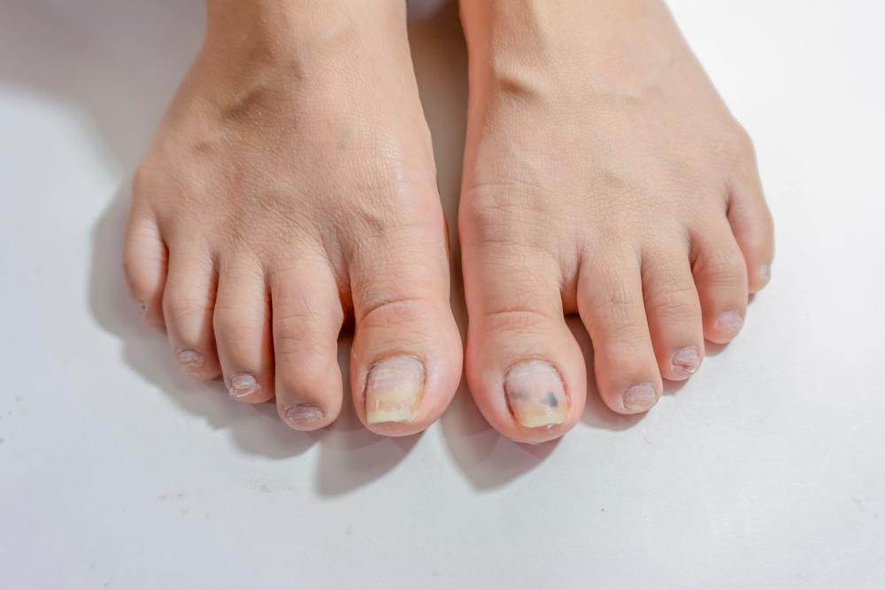 receta para los hongos de las uñas de los pies