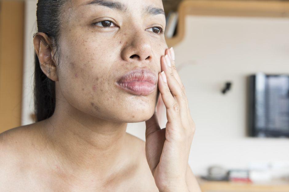 sirve el agua oxigenada para quitar manchas en la piel