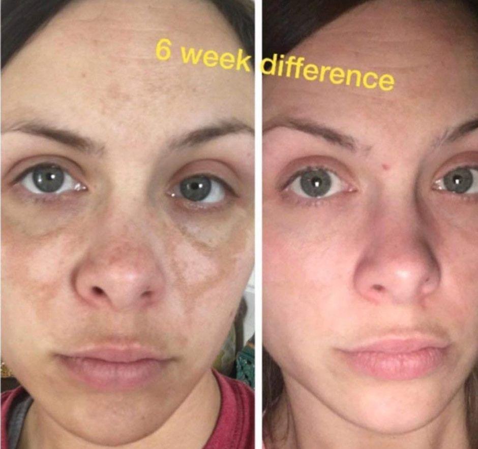 como quitar la melasma de la piel