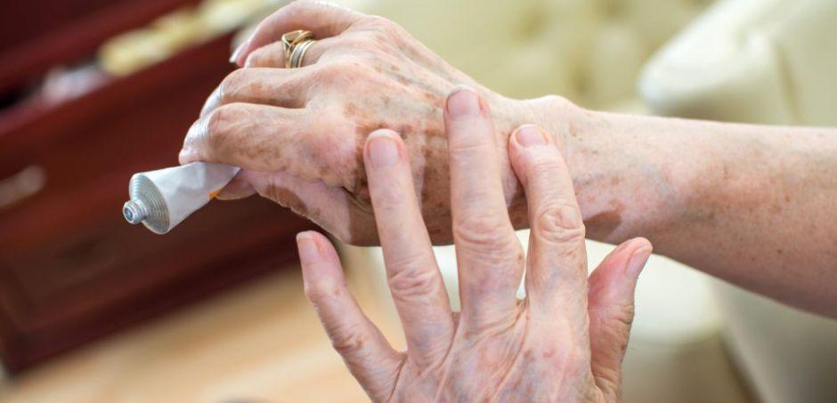 planta natural para la artritis reumatoide