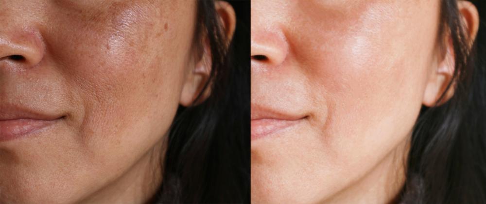 Los 4 mejores aceites naturales para eliminar las manchas de la cara