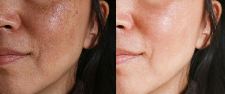 como quitar las espinillas de la cara natural
