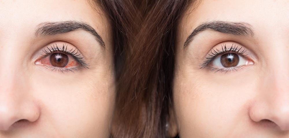 como quitar el ardor de ojos por jabon