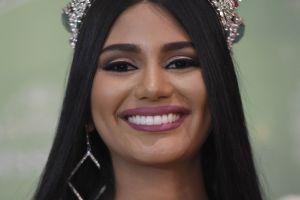 Exponen en Instagram a Miss Venezuela, finalista de Miss Universo 2018, antes de operarse la nariz