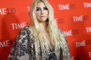 Kesha con sus pecas al natural, al mejor estilo de Natalia Téllez y Meghan Markle