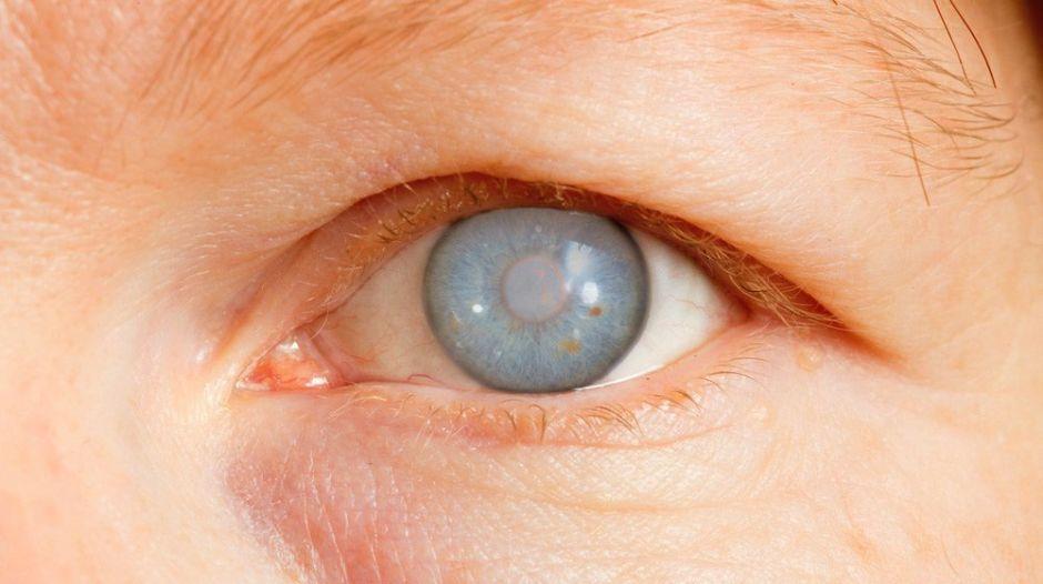 Glaucoma: 10 claves para prevenir esta enfermedad ocular