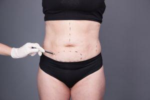 ¿Cuándo es aconsejable hacer una abdominoplastia, o cirugía para la reducción de abdomen?