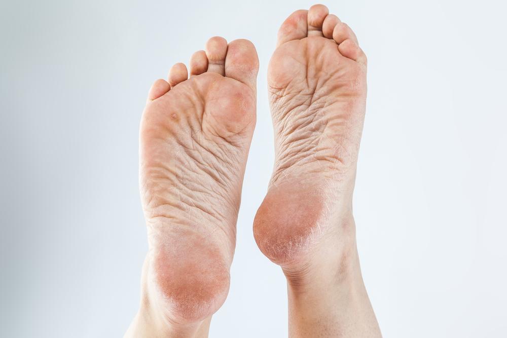 ¿Cómo quitar la resequedad de los pies?