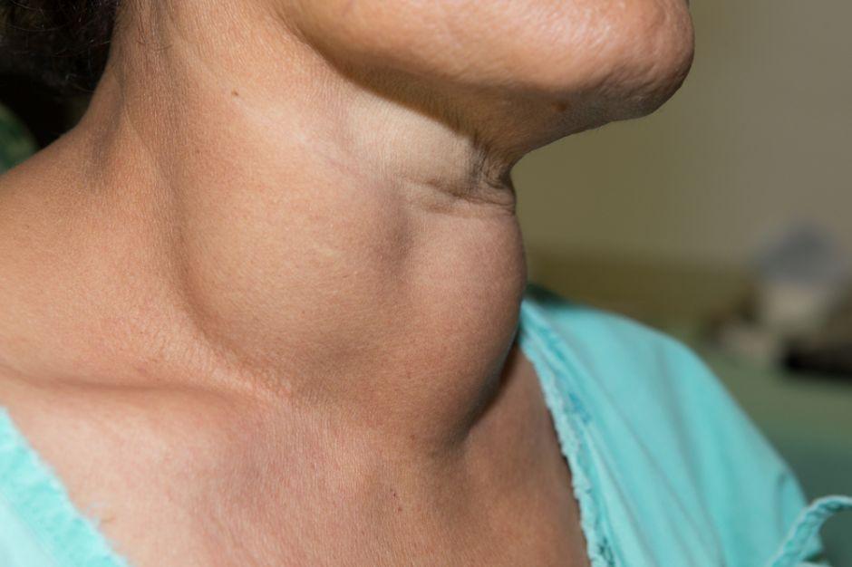 ¿Cuáles son los signos del cáncer de tiroides?
