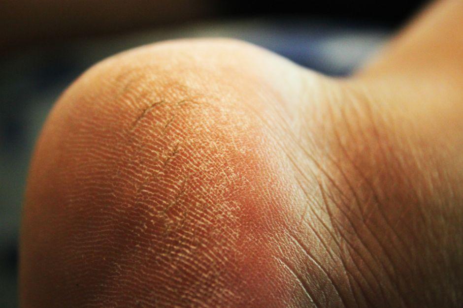 piel reseca en la planta del pie