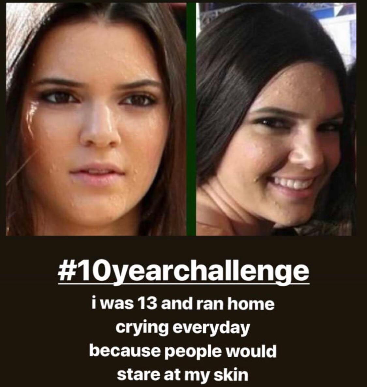 Kendall Jenner muestra su peor momento con el acné facial gracias al #10yearchallenge