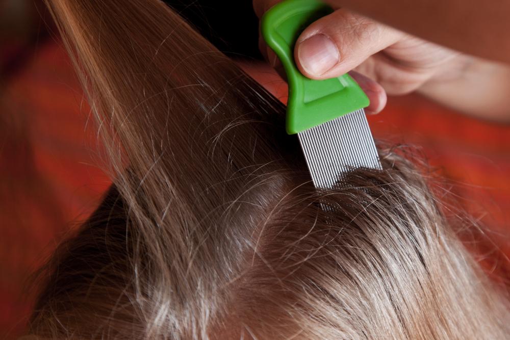 Los 4 mejores peines para quitar piojos del cabello efectivamente y sin dolor