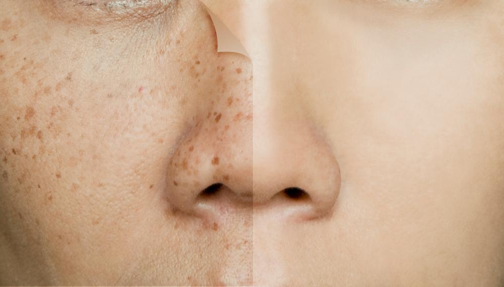5 productos que te ayudarán a eliminar las manchas de tu cara