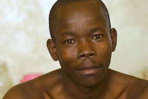 El hombre con los genitales más grandes del mundo por fin se operó para reducirlos