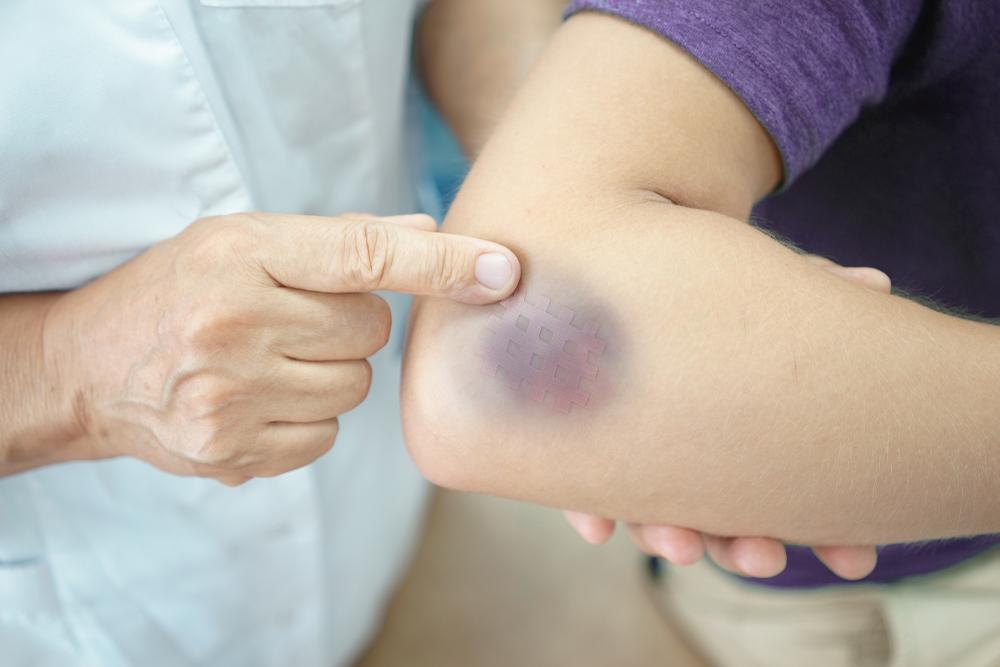 Enfermedad púrpura: el trastorno que produce hematomas y sangrado abundante