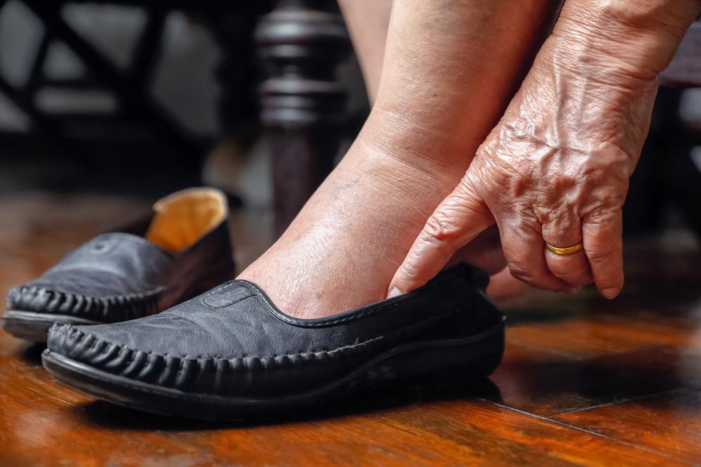 ¿Cuáles son los primeros síntomas del pie diabético y cómo podemos evitarlo?