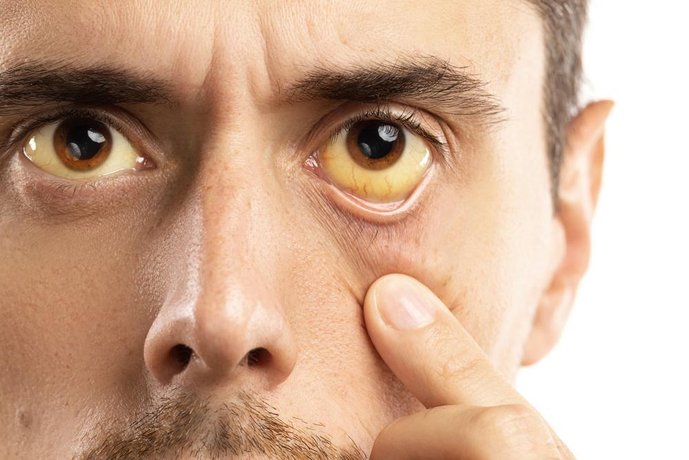 Cirrosis: ¿Cuáles son los síntomas y sus causas?
