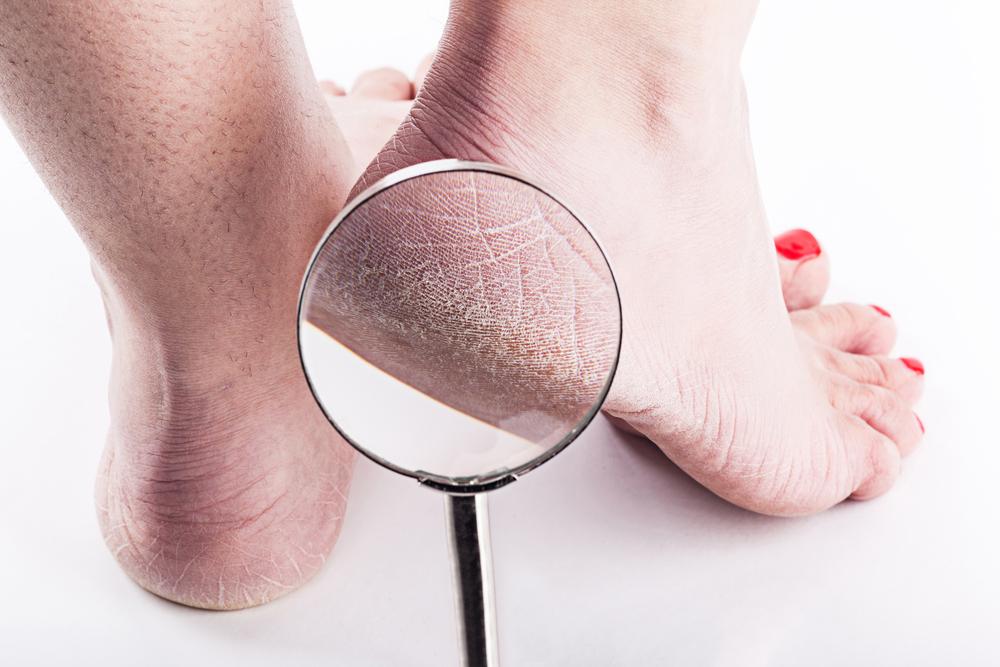 ¿Cómo puedo eliminar los callos y la resequedad de mis pies?