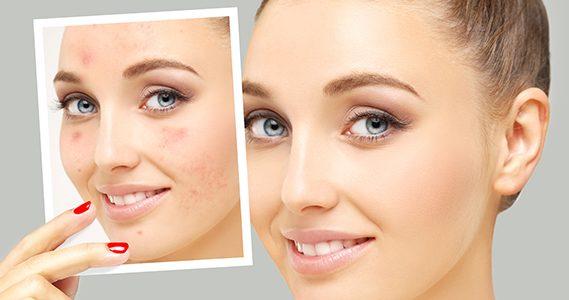 Las 7 mejores cremas para eliminar el acné corporal