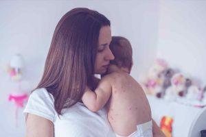 En riesgo de contraer sarampión los nacidos entre 1957 y 1989
