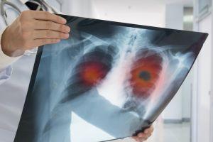 """Cáncer de pulmón: el programa de Google que detecta esta enfermedad """"con más eficiencia que los médicos"""""""