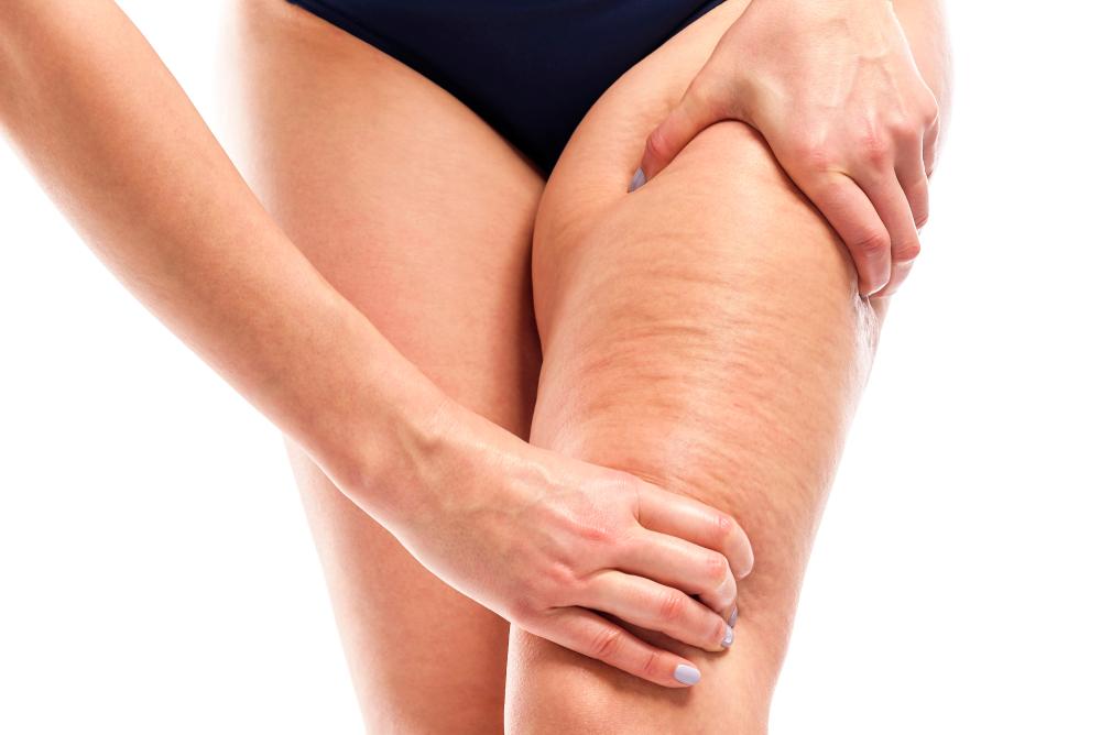 Los 6 mejores productos para eliminar la celulitis de tus piernas