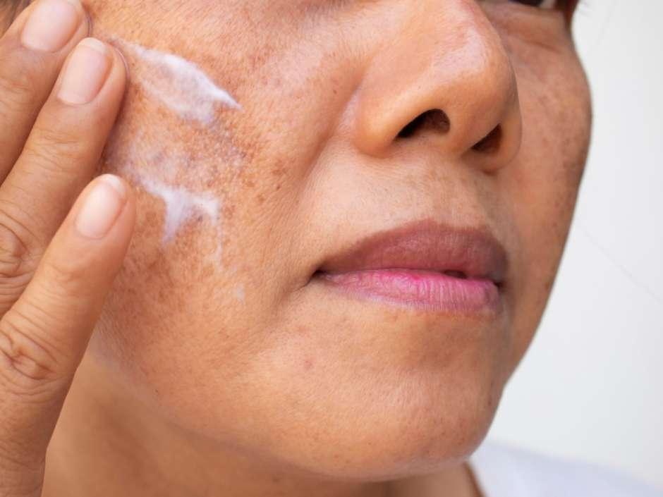 como eliminar las manchas de la cara por la edad