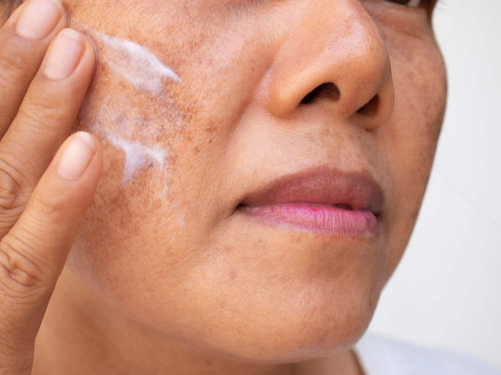 3 cremas que eliminan las manchas de la cara ocasionadas por la menopausia