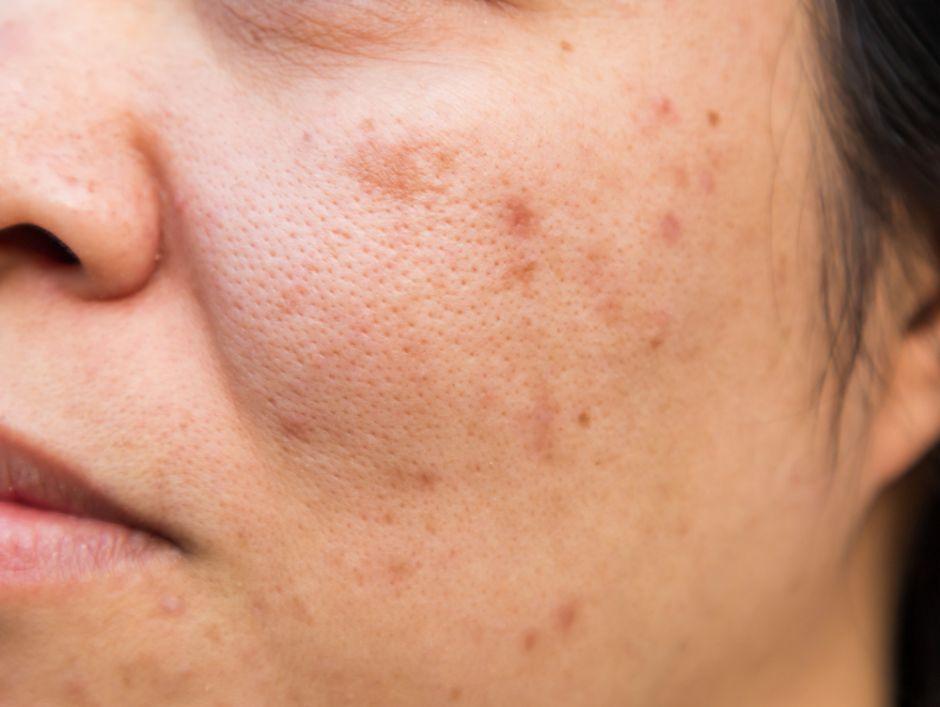 como eliminar las manchas rojas de acne de la cara
