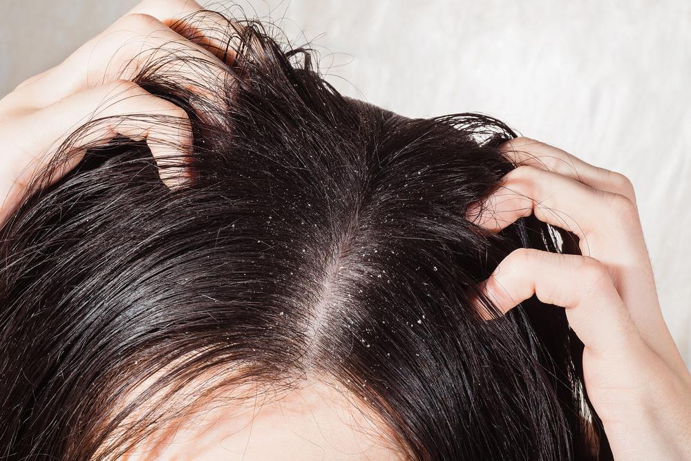 el vinagre de manzana sirve para el cabello graso