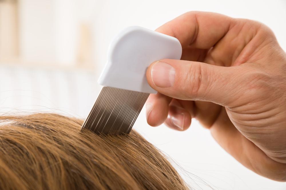 Los 4 mejores kits para eliminar los piojos del pelo