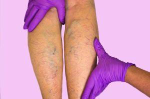 ¿Hinchazón en las piernas? Aprende cómo prevenir la insuficiencia venosa