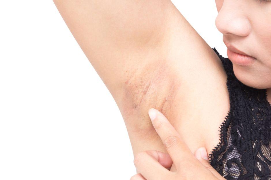 5 jabones blanqueadores para aclarar las zonas oscuras de tu piel