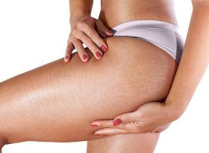 Aprende cómo exfoliar las estrías para tener obtener una piel más tersa