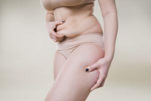Lifting corporal: ¿es posible eliminar el exceso de piel en todo el cuerpo?