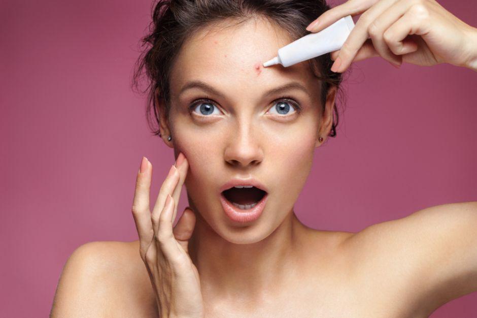 Maravillosas infusiones herbales para disminuir el acné