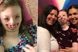 Niña desfigurada, insultada por su aspecto, muere a los 10 años