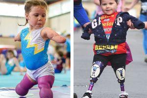 No tiene brazos ni piernas pero ya es una gran gimnasta