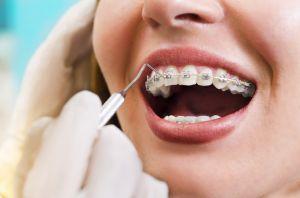 9 ventajas y beneficios que ofrece la ortodoncia