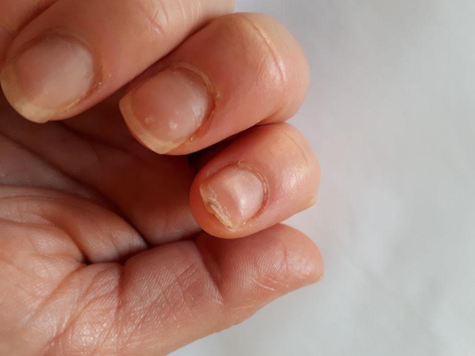 ¿Cómo evitar y sanar las uñas quebradizas?