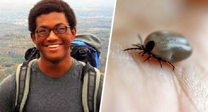 Muere por tener una garrapata en el cuerpo, los médicos no vieron el insecto