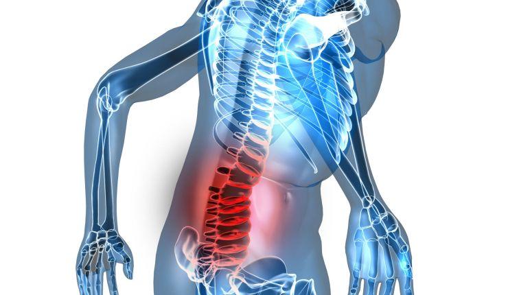 La artritis en la columna afecta entre los 20 y 30 años: ¿se puede prevenir?