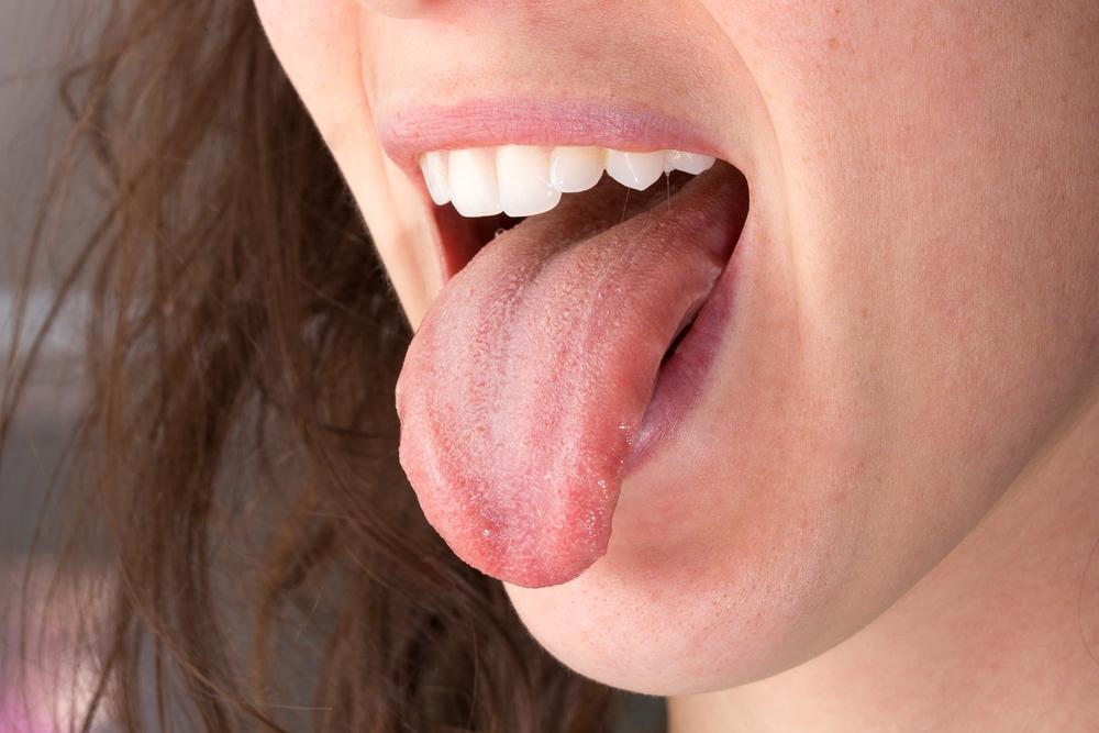 ránula lengua