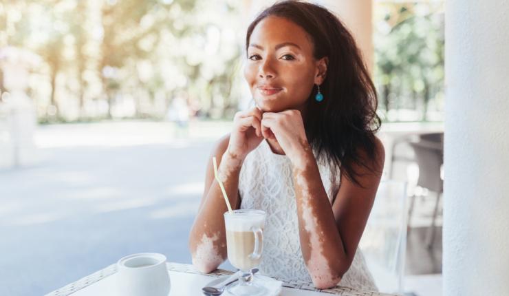 ¿Cuáles son las causas y riesgos del vitiligo?